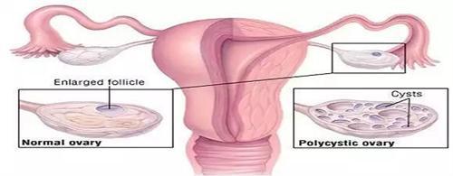 多囊卵巢综合征