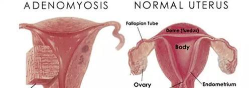 子宫腺肌症
