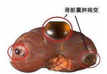 实体肿瘤的肾脏损害