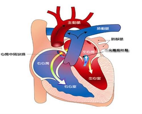 心内膜垫缺损