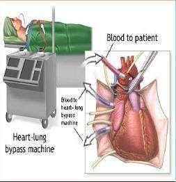心脏直视手术所致神经疾病