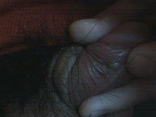 急性包皮炎