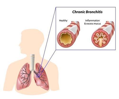 急性支气管炎