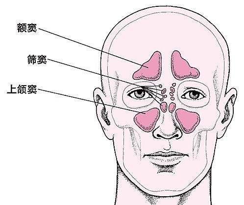 急性额窦炎