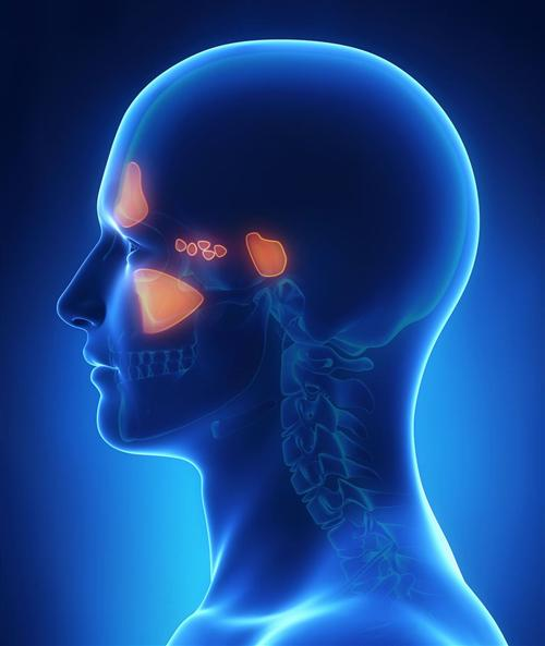 急性鼻窦炎