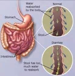 感染性腹泻