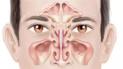 慢性鼻窦炎