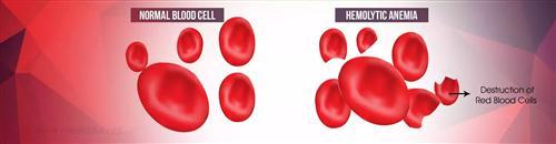 溶血性贫血
