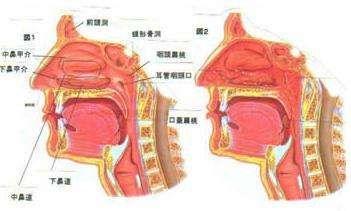 病毒性喉炎