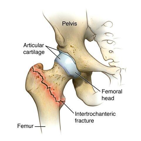 股骨粗隆间骨折