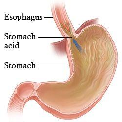 胃食管反流病