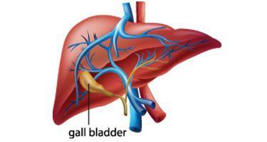 胆囊切除术后综合征