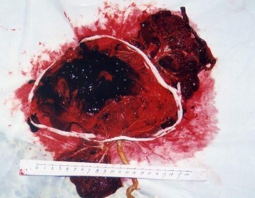 胎盘部位滋养细胞肿瘤