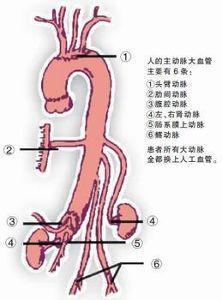 胸腹主动脉动脉瘤