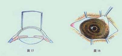 蚕食性角膜溃疡