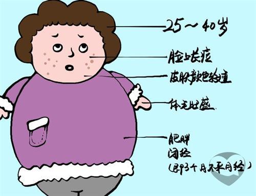 避孕后闭经综合征