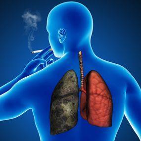 阻塞性肺气肿