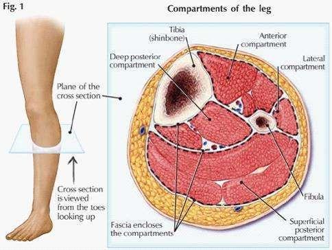 骨筋膜室综合症