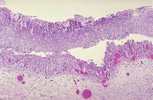 伪膜性肠炎