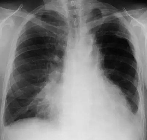 吸入性肺炎