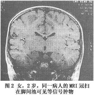 小儿下丘脑错构瘤