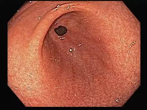 慢性浅表性胃炎