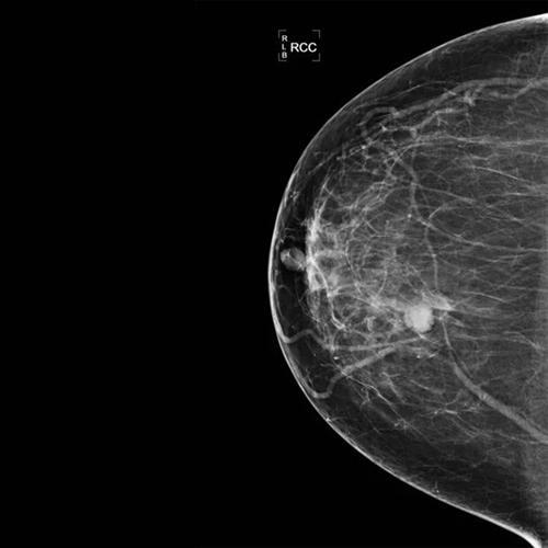 早期乳腺癌