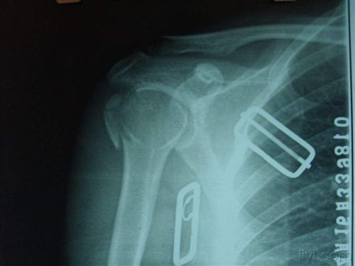 肱骨大结节骨折