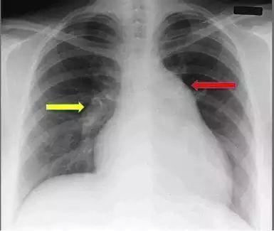 肺动脉高压