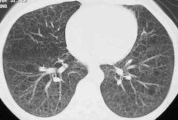 肺组织细胞增生症
