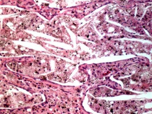 胆固醇肺炎