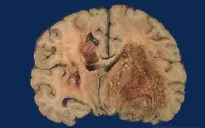胶质细胞瘤