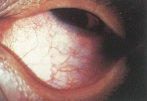 Wegner肉芽肿伴发的葡萄膜炎