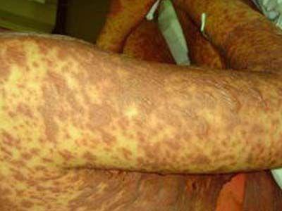 中毒性坏死性表皮松解型药疹