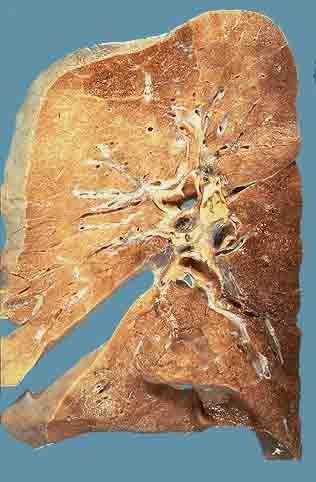 克雷白杆菌肺炎