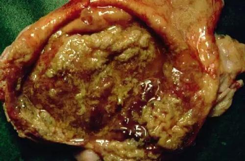 慢性膀胱炎