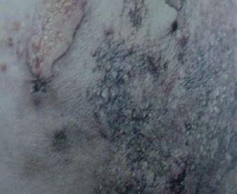 慢性萎缩性肢皮炎