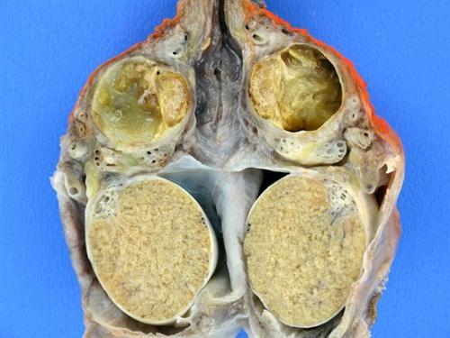 慢性附睾炎