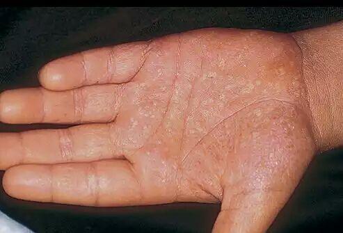 掌跖脓疱病