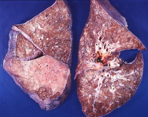 支气管肺炎
