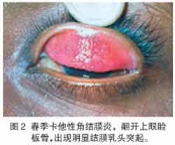 春季结膜炎