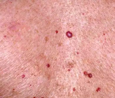 毛细血管瘤