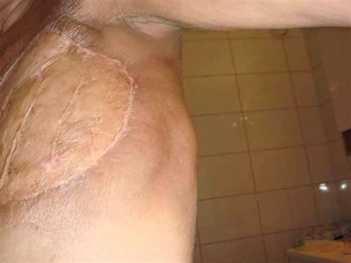 炎性乳腺癌