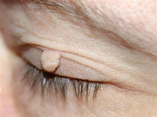 皮肤纤维瘤