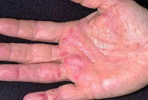 真菌性皮肤病症状