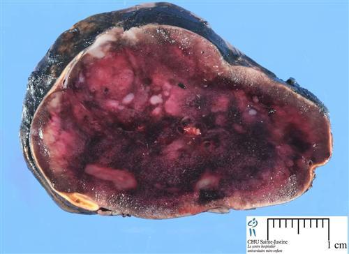 神经母细胞瘤