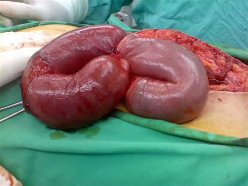 粘连性肠梗阻