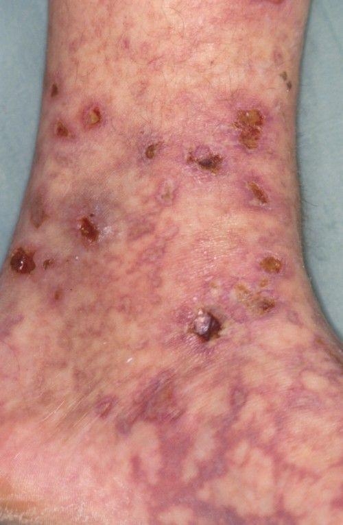 网状青斑和青斑性血管炎