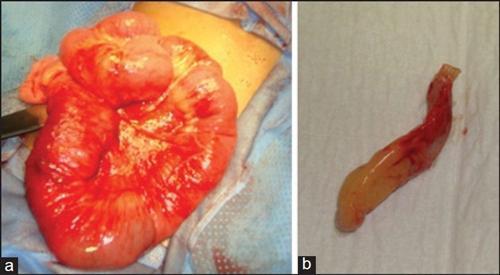 肠系膜淋巴结炎