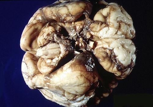 脑出血后遗症